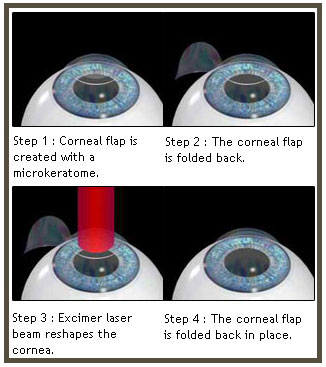 what-is-lasik