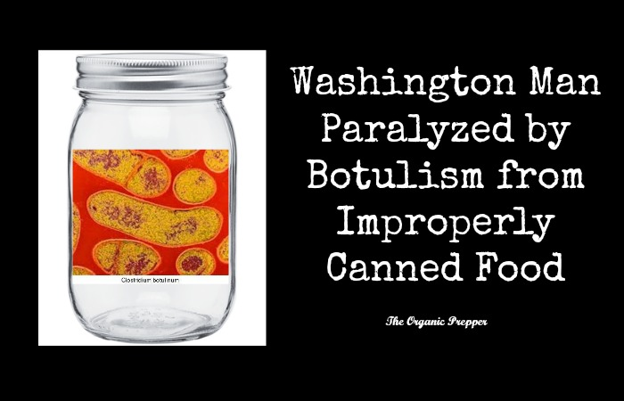 botulism rosaler essay Botulism essay there are three forms of human botulism: infant botulism, food borne botulism and wound botulism (arnon 1997) due to the limits presented by this assignment, i will concentrate on food borne botulism, otherwise known as classical botulism general descriptionclostridium botulinum is a gram- positive, spore forming, rod shaped.