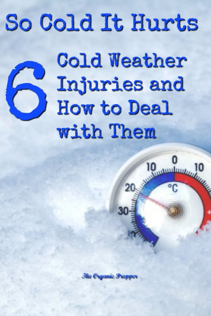 Winter brings its own special set of common injuries. Here is what you need to know to recognize, prevent, and care for a serious, cold weather injury.   The Organic Prepper