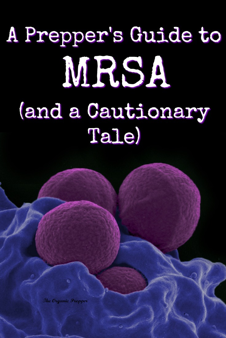 MRSA is a superbug that is difficult to treat because it is resistant to most of our antibiotics. This makes it of particular concern in an SHTF world. | The Organic Prepper